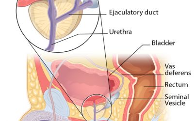 Vasectomy may increase risk of aggressive prostate cancer