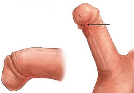 penile frenulectomy toronto
