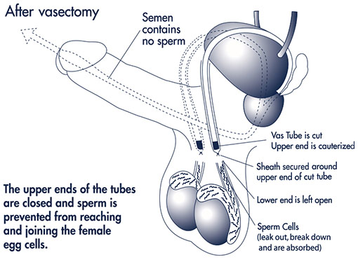 vasectomy procedure toronto